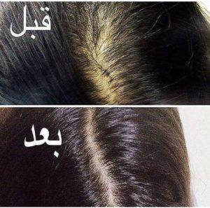 زيوت تطويل الشعر في شهر