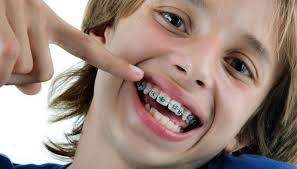 انواع تقويم الاسنان