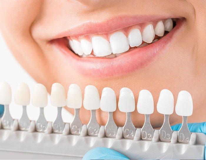 اسعار تقويم الاسنان في تركيا