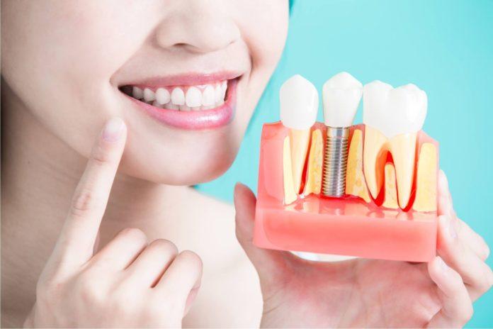 زرع الاسنان بدون جراحة