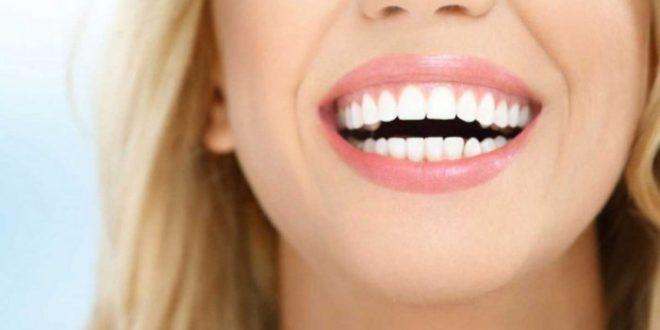 اسعارتبييض الاسنان بالليزر في تركيا