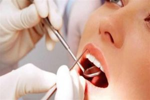 مراكز علاج الاسنان في تركيا