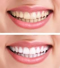 تركيب عدسات الاسنان