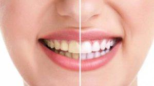 كم سعر عدسات الاسنان في تركيا