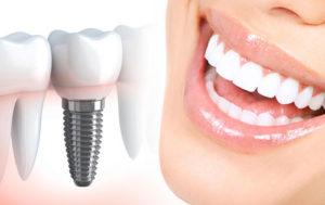 تجربتي مع زراعة الاسنان في تركيا
