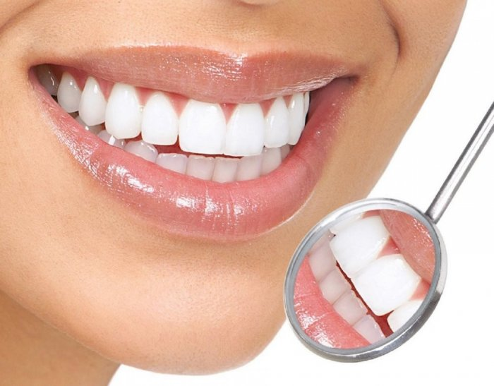 تجربتي في تلبيس الاسنان في تركيا