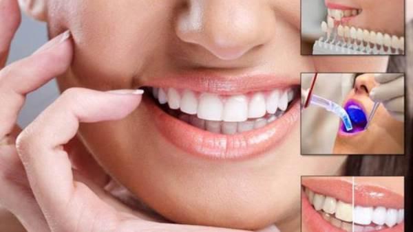 تجميل الاسنان بالليزر