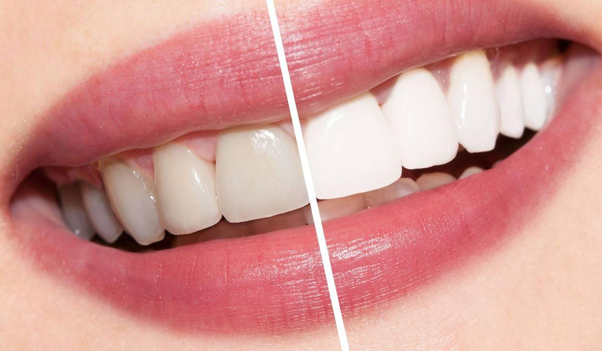 تجميل الاسنان قبل وبعد