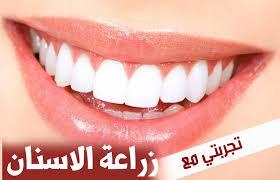الجديد في زراعة الاسنان