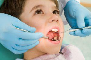 سقوط عدسات الاسنان