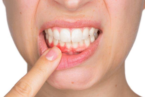 مخاطر زراعة الاسنان
