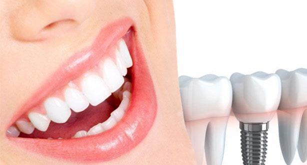 مراكز زراعة الاسنان في تركيا
