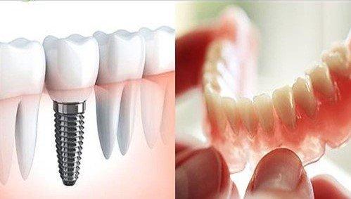زراعة الاسنان في انقرة