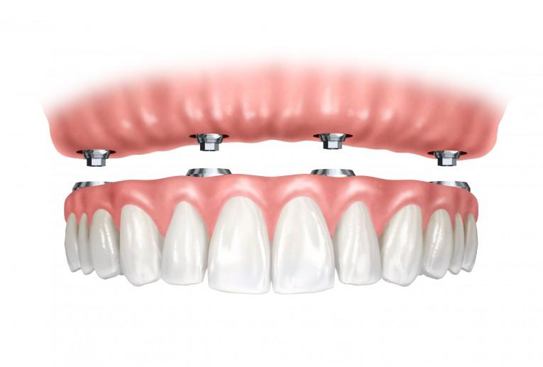 مراحل زراعة الاسنان