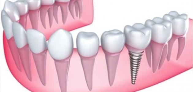 مشاكل زراعة الاسنان