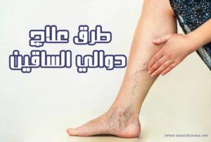 اضرار علاج الدوالي بالليزر