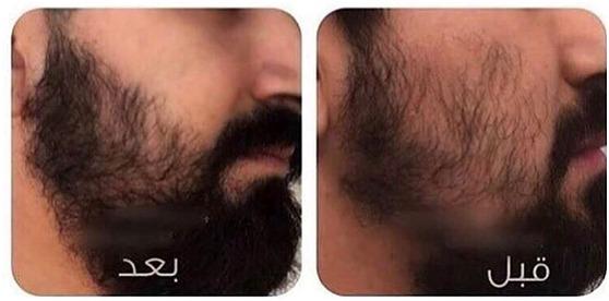 زيت الحشيش لانبات شعر الذقن 0540428830 نتائج ملموسة في وقت قصير