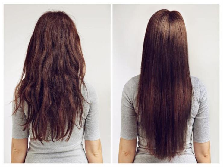 أحدث علاج لتساقط الشعر