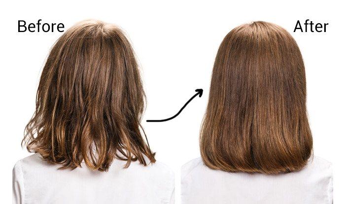 اخصائية علاج الشعر بالرياض.
