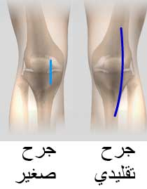 اضرار الركبة الصناعية