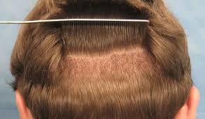 افضل دكتور لعلاج فراغات الشعر بالرياض