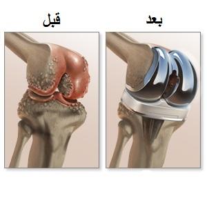 انواع عمليات الركبة