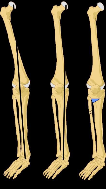 انواع مفاصل الفخذ الصناعية