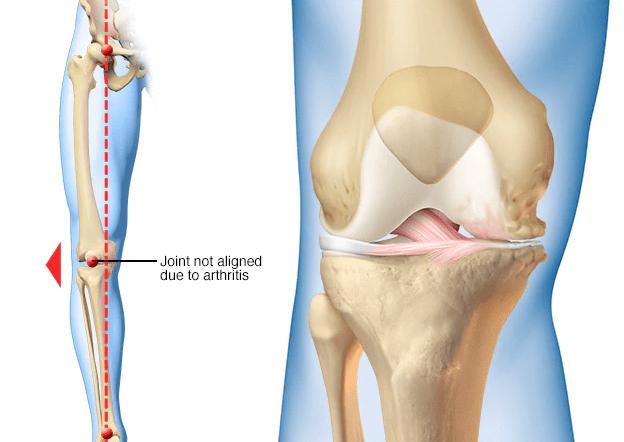 بديل عملية تغيير مفصل الركبة