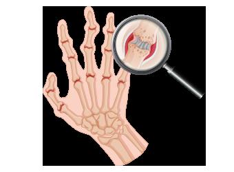 تركيب اصابع اليد