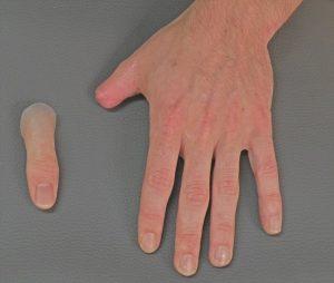تركيب يد صناعية