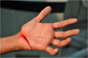 زراعة اصابع اليد للأطفال