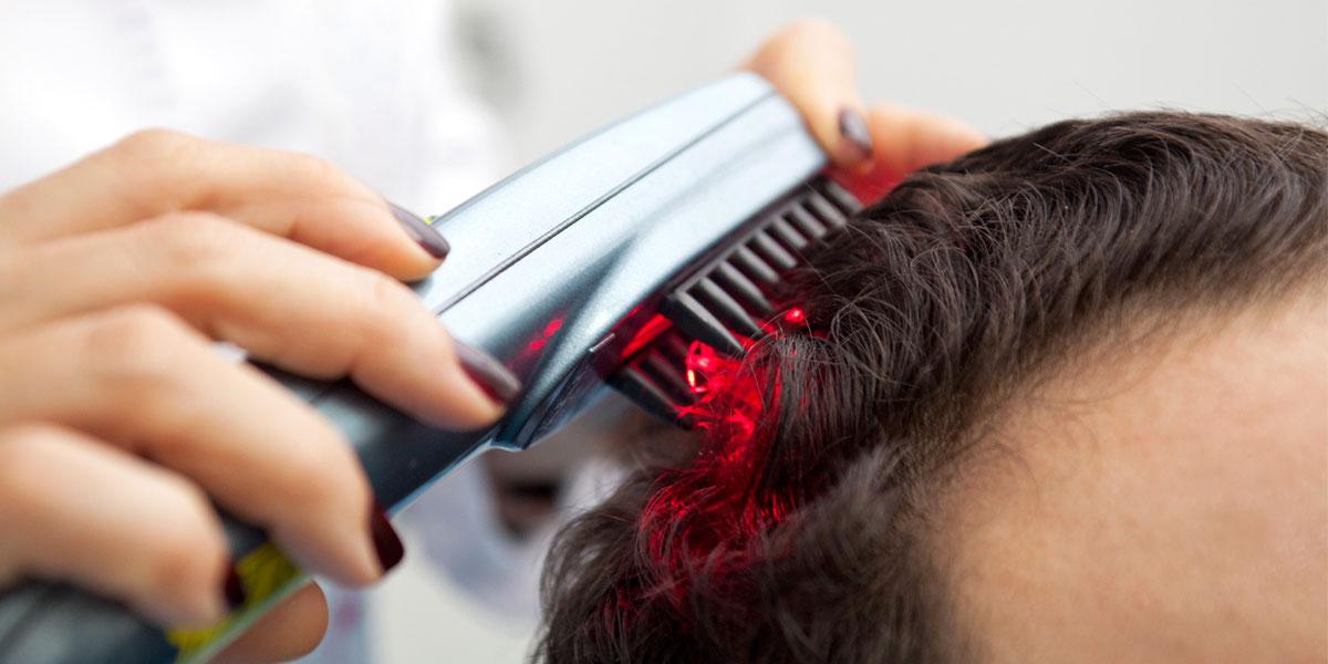 علاج نهائي لتساقط الشعر.