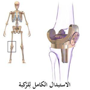 انواع مفصل الركبة الصناعية
