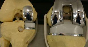 عملية تركيب ركبة صناعية