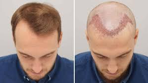 مراكز علاج الشعر في الرياض