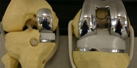 مفصل الركبة الصناعي