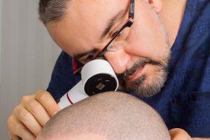 عمليات تجميل وزراعة الشعر