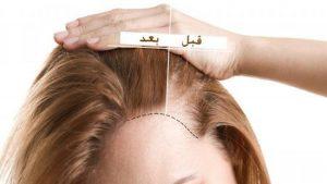 أسعار زراعة الشعر في اسطنبول