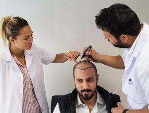 تقييم افضل مراكز زراعة الشعر في تركيا
