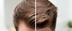 تكلفة زراعة الشعر في تركيا 2020