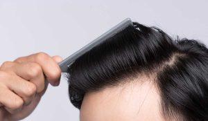 دكاترة زراعة الشعر