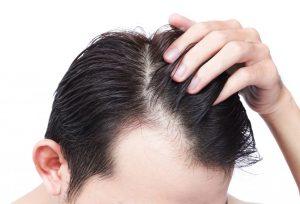 زراعة الشعر في اسطنبول اسعار