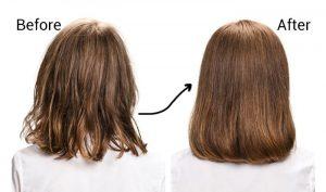 زراعة الشعر في تركيا قبل وبعد