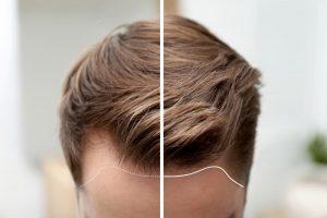 طرق زراعة الشعر في تركيا