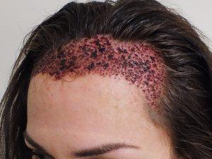 عمليات زراعة الشعر في تركيا إسطنبول
