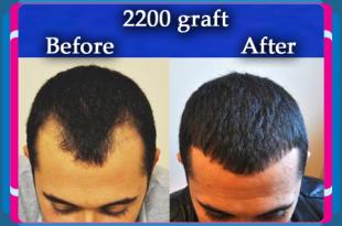 عيادات زراعة الشعر في تركيا