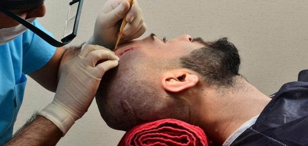 مستشفى زراعة الشعر في تركيا