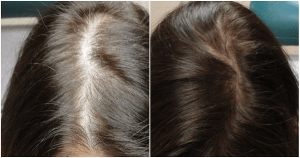 معلومات عن عملية زراعة الشعر